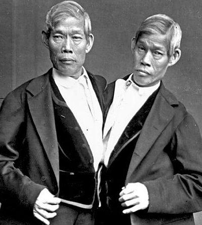 Cheng y Eng, los gemelos siameses